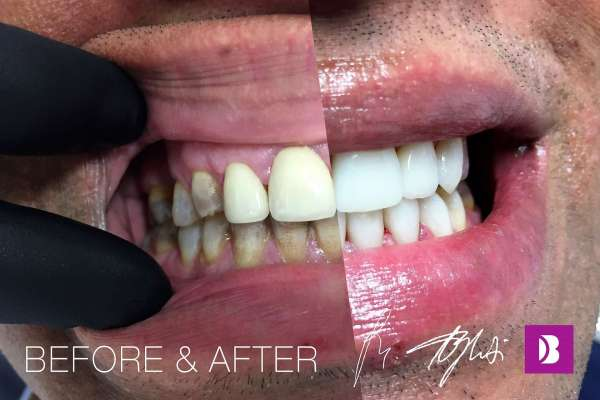 Roshan Diaz, Switzerland- crowns – makeover