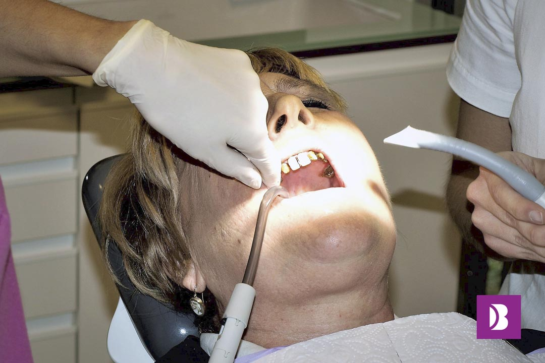 All on four - Dental implant surgery 2