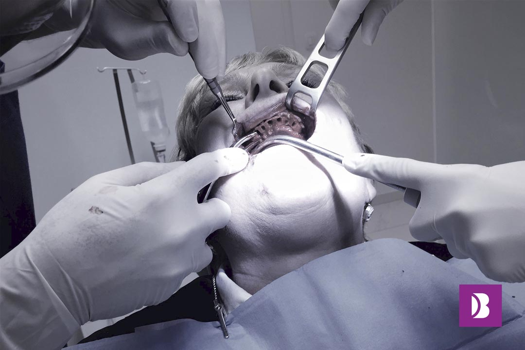 All on four - Dental implant surgery 4