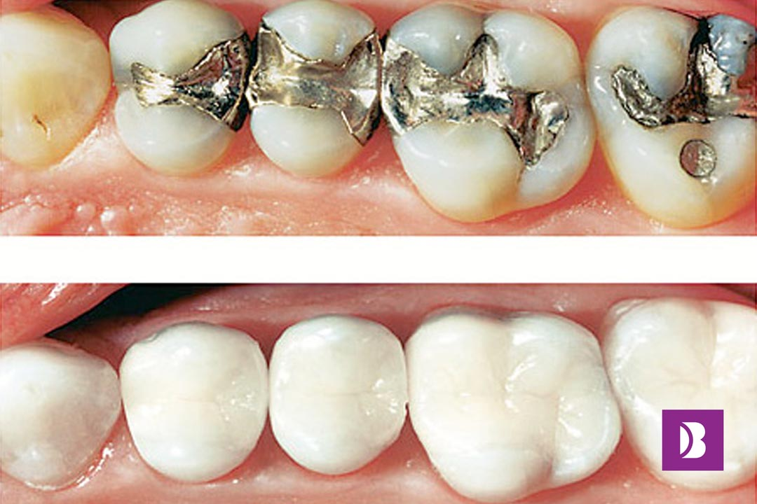 Dental Composite Fillings
